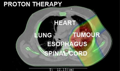 Proton Therapy Lung Cancer by Lung Cancer Treatment Uk Treatment Lung Cancer