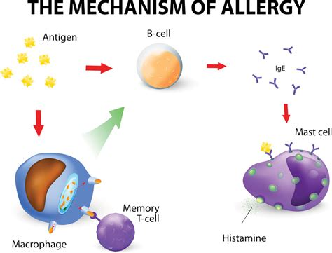 Children Of The Mechanism mechanism of allergy pediatric pulmonologists