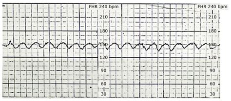 pattern heart rate sinusoidal fhr pattern