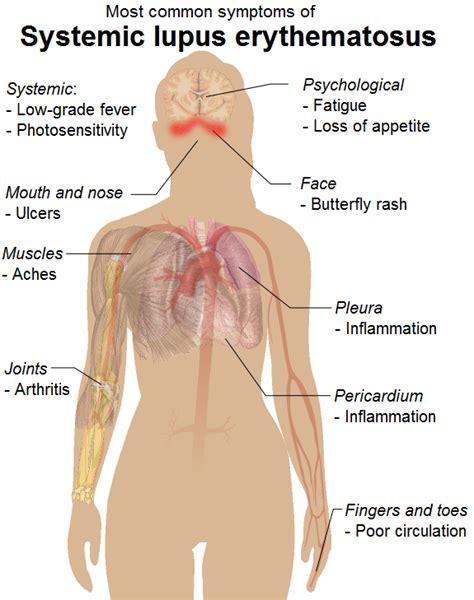 systemic lupus erythematosus symptoms diagnosis causes