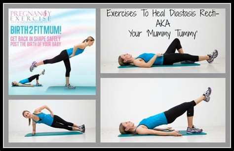 diastasis recti exercises pregnancy exercise