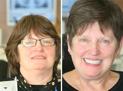 implant dentures    pictures natural smiles