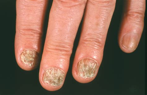 Images Of Fingernail Fungus nail fungus symptoms causes and risk factors home