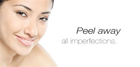 Paket Chemical Soft Peel Acne what is a chemical peel west end salon west end salon