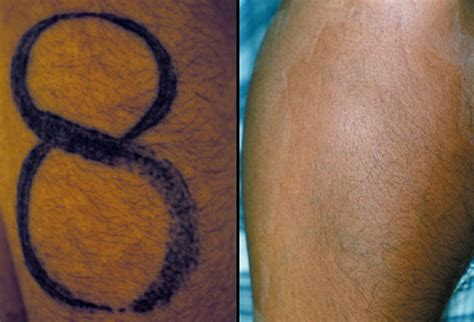 remove skin tattoo colour black skin