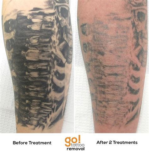 tattoo removal progress pin by go removal on removal in progress