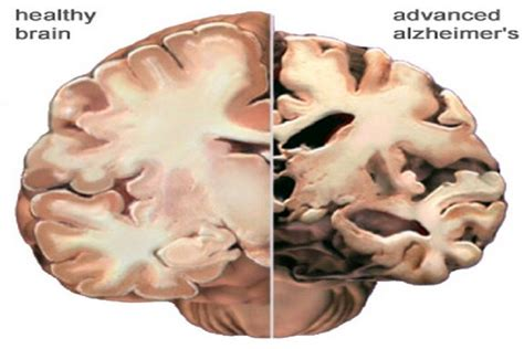 alzheimer s occipital neuralgia causes symptoms cure and treatment