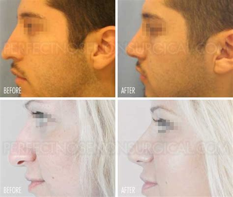 nose shaper before and after nose up by perfect nose non surgical instant nose lift