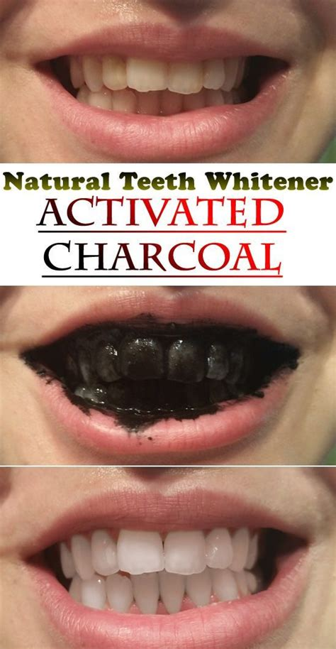 natural teeth whitener  activated charcoal tattoos