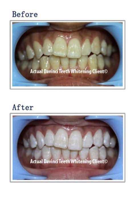 teeth whitening mariannas lesthetique medi spa