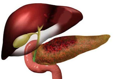 pancreatite dieta alimentare dieta alimentar para pancreatite novo card 225 pio aqui