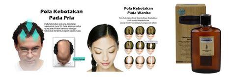 Hair Serum Penumbuh Rambut Dan Menguatkan Akar Rambut Alami kaminomoto serum penumbuh rambut