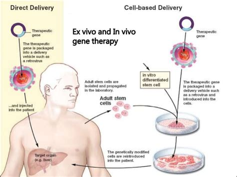 Gene Therapy Essay by Research Paper On Gene Therapy