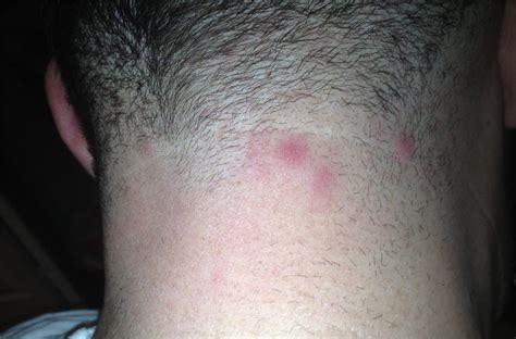 ingrown pimple on back are these ingrowns folliculitis pseudo folliculitis