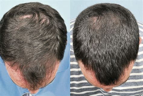 propecia or rogaine for frontal hair loss receding hairline finasteride minoxidil before after synthroid hair loss