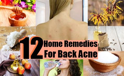 Home Remedies Back by 12 Home Remedies For Back Acne Diy Health Remedy