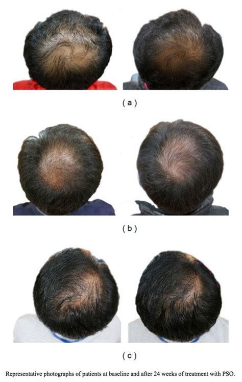 Dht Controlled By What You Eat You Bet Find Out How To   the 12 best natural dht blockers regrow your hair in 16