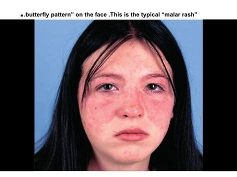 acute systemic lupus erythematosus