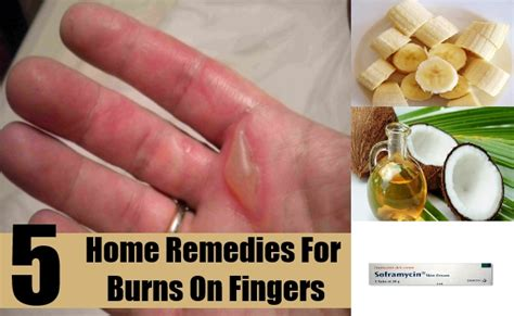 5 excellent home remedies for burns on fingers