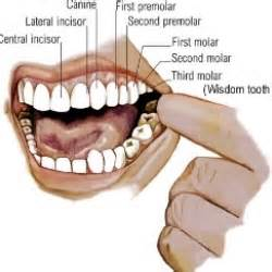 tooth extraction relief home remedies top home remedies for wisdom tooth cure and