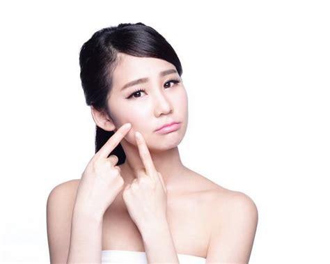 Telat Haid Jerawat Muncul Kenali Hormon Penyebab Jerawat Dan Cara Menanganinya