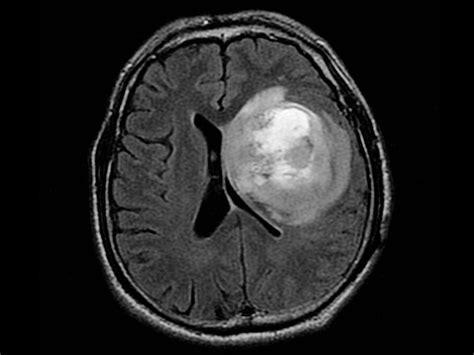 brain tumor expectancy glioblastoma brain tumor expectancy foto 2017