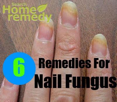 home remedies  nail fungus natural treatments cure