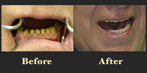 dental patient  smile gallery