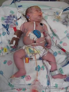 Tenant In Hospital Detoxing Can I Throw Him Out by 218 Best The Faces Of Chd Congenital Awareness