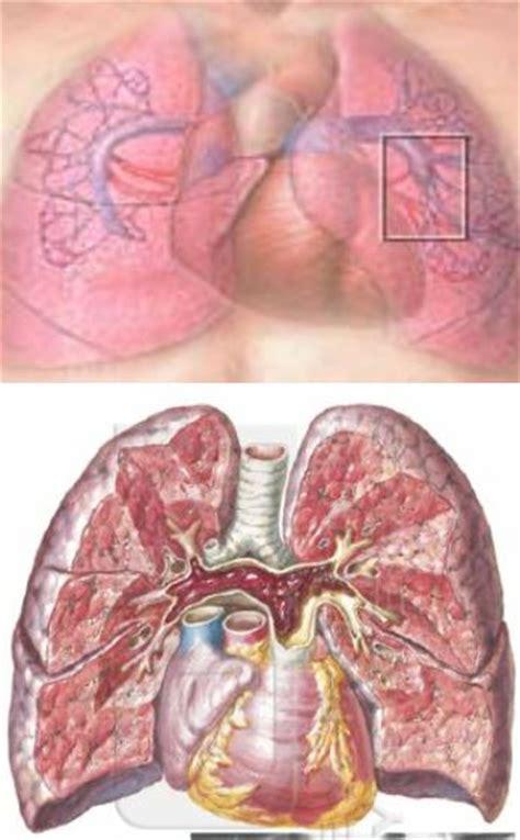 letto vascolare il trattamento endovascolare dell embolia polmonare