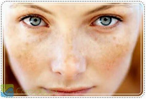 tips hilangkan flek hitam membandel obat herbal penyakit