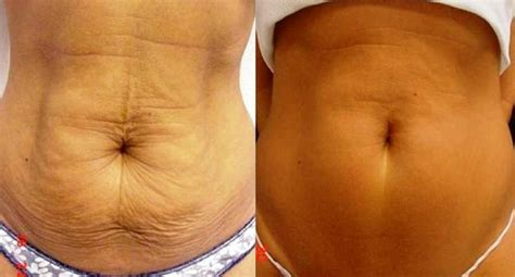 12 Ways To Tighten Your Stomach After A Baby by Laser Skin Tightening 101 Zap The Years Away