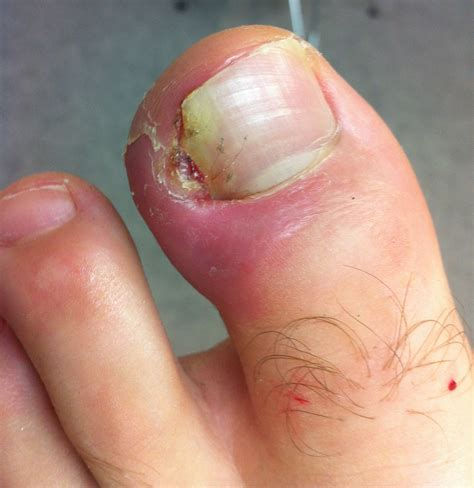 infected toenail bed bad infected ingrown toenail how you can do it at home