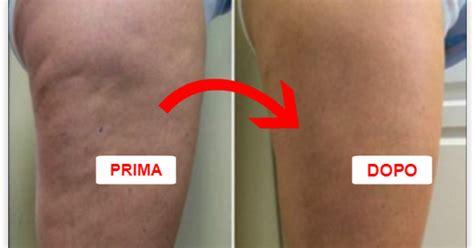 eliminare cellulite sedere un modo superfast per eliminare la cellulite da gambe e sedere