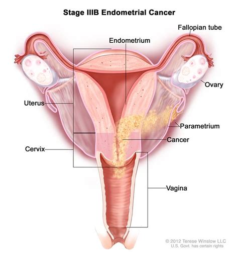 cross section of a vagina endometrial cancer treatment pdq 174 patient version
