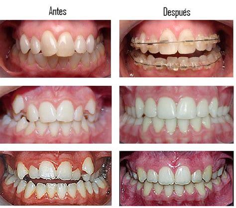 preguntas con both bnalqueamiento dental y todos sobre eso y preguntas