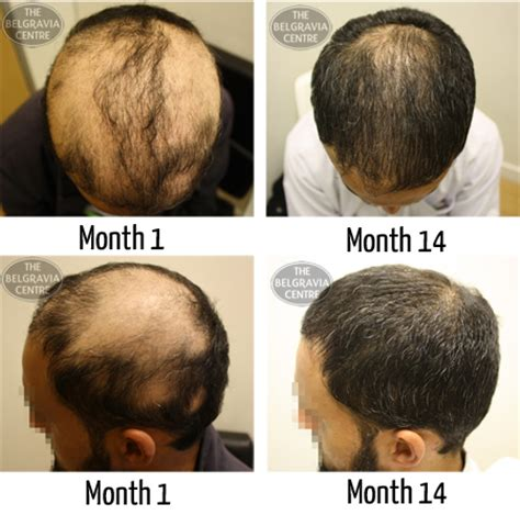 male pattern hair loss emedicine hair growth success hair has complete regrown on most of