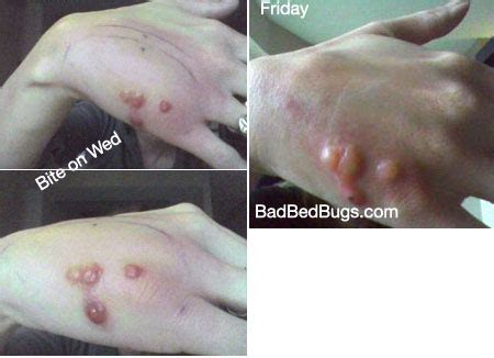do bed bug bites spread do bed bug bites spread 28 images bug bite bed bugs and beds on pinterest how do