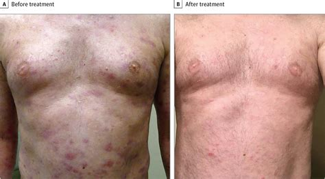 B Skin brentuximab vedotin for cutaneous gamma delta t cell