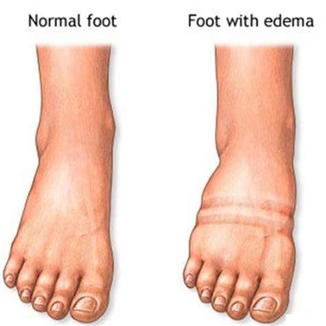 gonfiore interno coscia edema definizione di gonfiore infiammazione