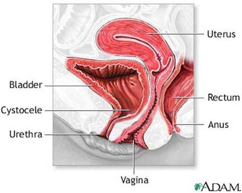 diagram of prolapsed uterus pelvic organ prolapse tell me more renew physical therapy