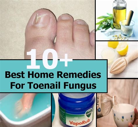 [click]10 Home Remedies For Toenail Fungus - Healthline.