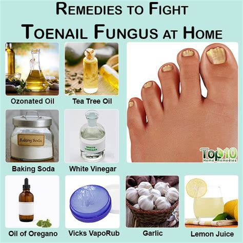 [click]10 Remedies To Fight Toenail Fungus At Home.