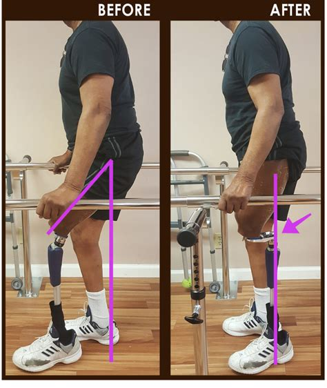 25 degree hip flexor contracture in amputee