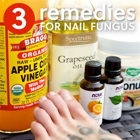 [click]3 Simple Home Remedies For Toenail Fungus  Everyday Roots.