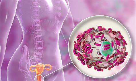 Bacterial Vaginosis & Candida Yeast Infection & Cellulite Solution.
