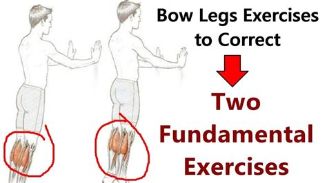 @ Bow Legs Correction - 5 Exercises To Correct Bow Legs.
