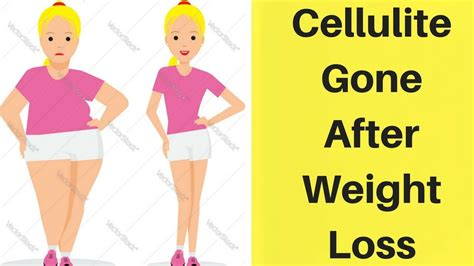 @ Cellulite Gone No Weight Loss No Gym Routine Review .