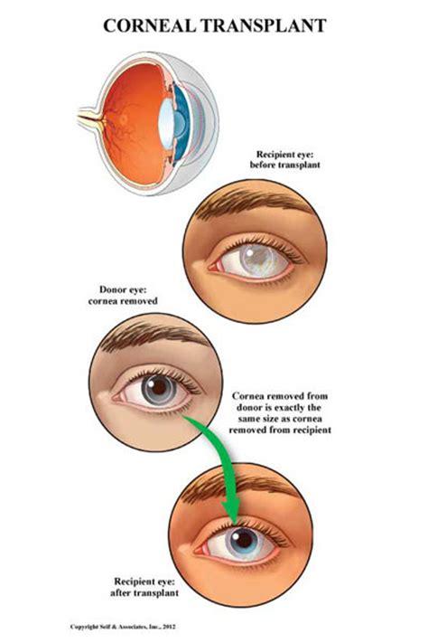 Cornea Transplant