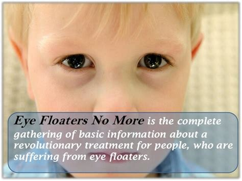 [click]coupon Code For Eye Floaters No More  New Niche With High .
